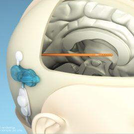 3D Medical Device Illustration – Cerebral Shunt