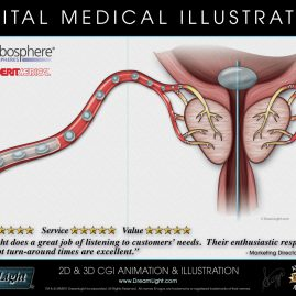 Embolics Digital Medical Illustration