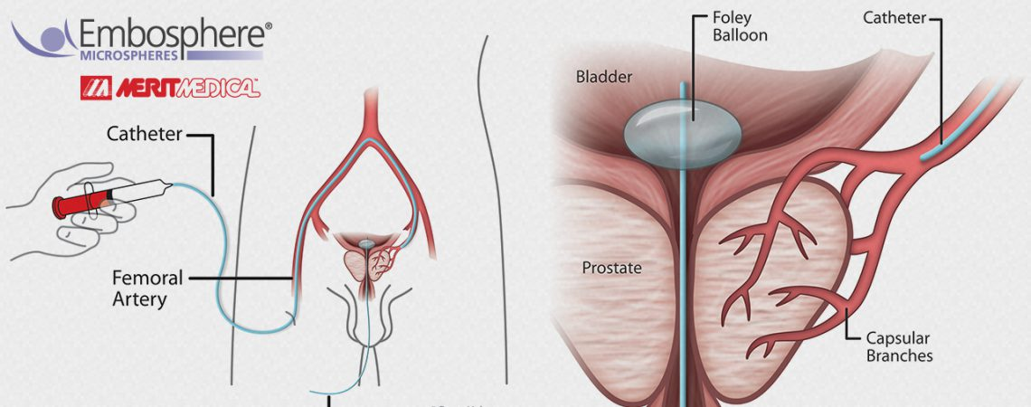 Digital Medical Illustration