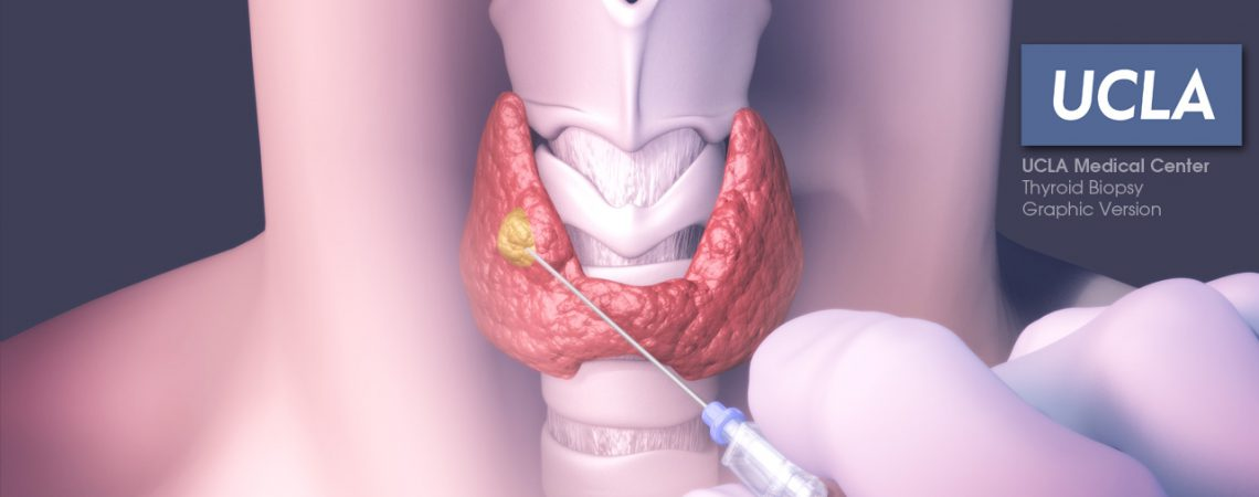 3D Illustration of Thyroid Biopsy - Graphic