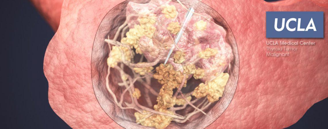 3D Illustration of Thyroid Tumor – Malignant