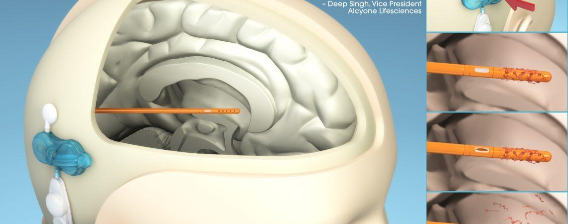 3D Medical Device Illustration - Cerebral Shunt