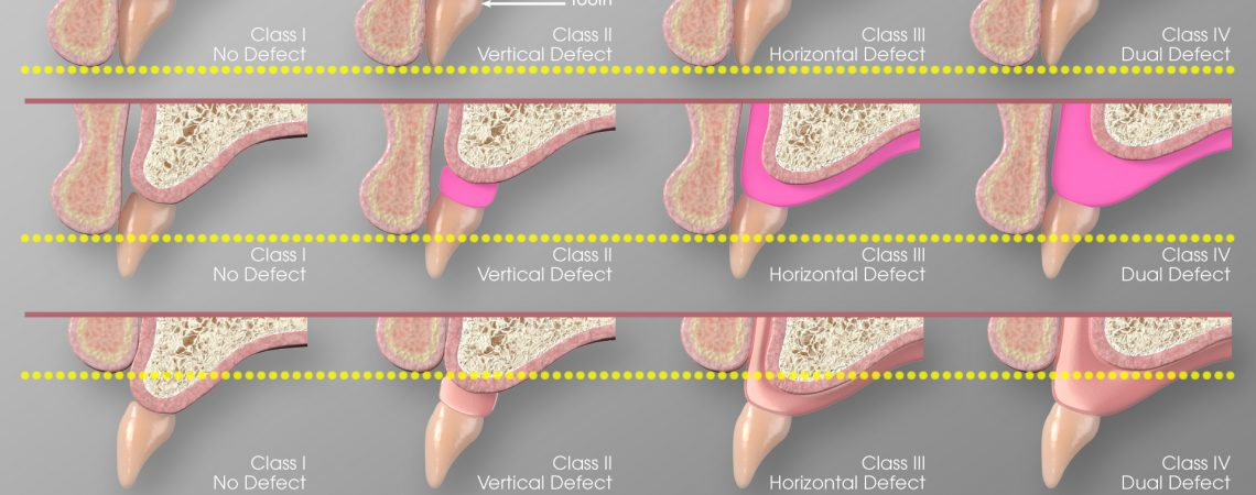 3D Dental Illustration