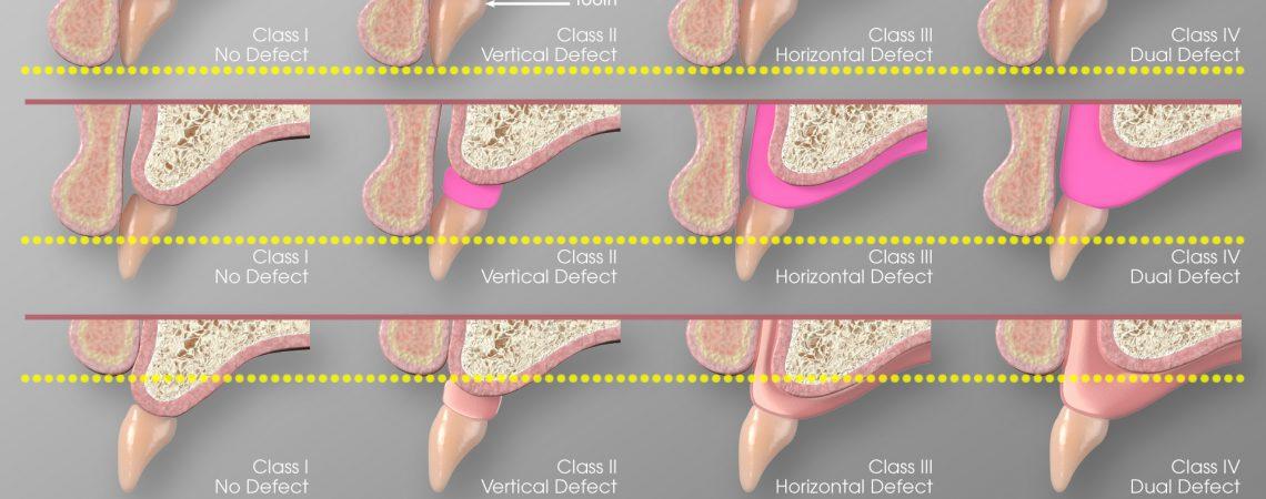 3D Dental Illustration
