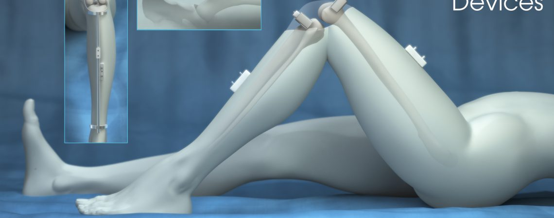 Medical Device Illustration - Knee + Hip Devices