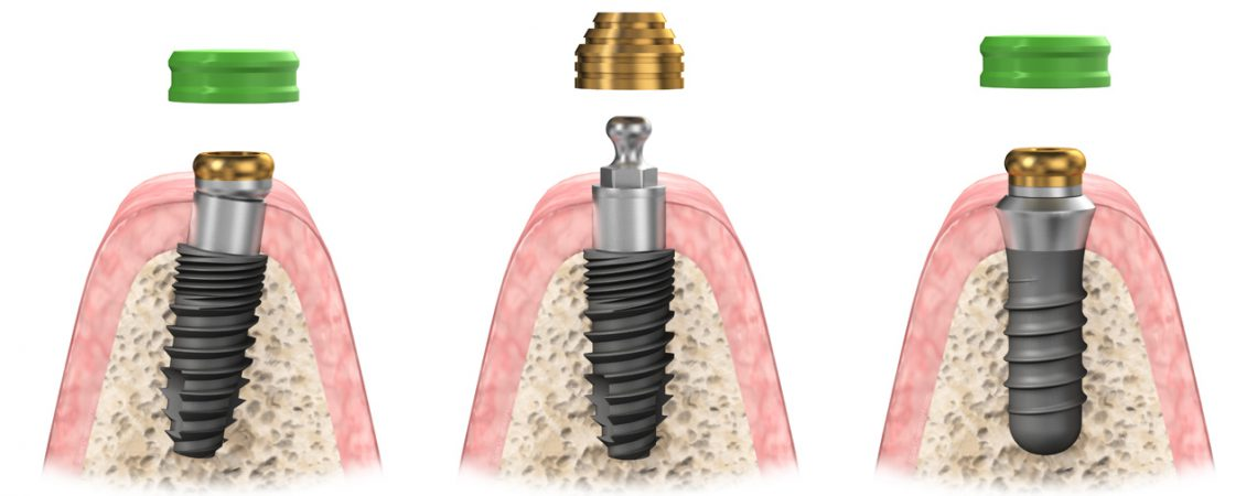 3D Dental Implant Gum Cross Section - 3D dental device product illustration and animation