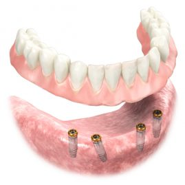 3D Dentures with Implants - 3D dental device product illustration and animation