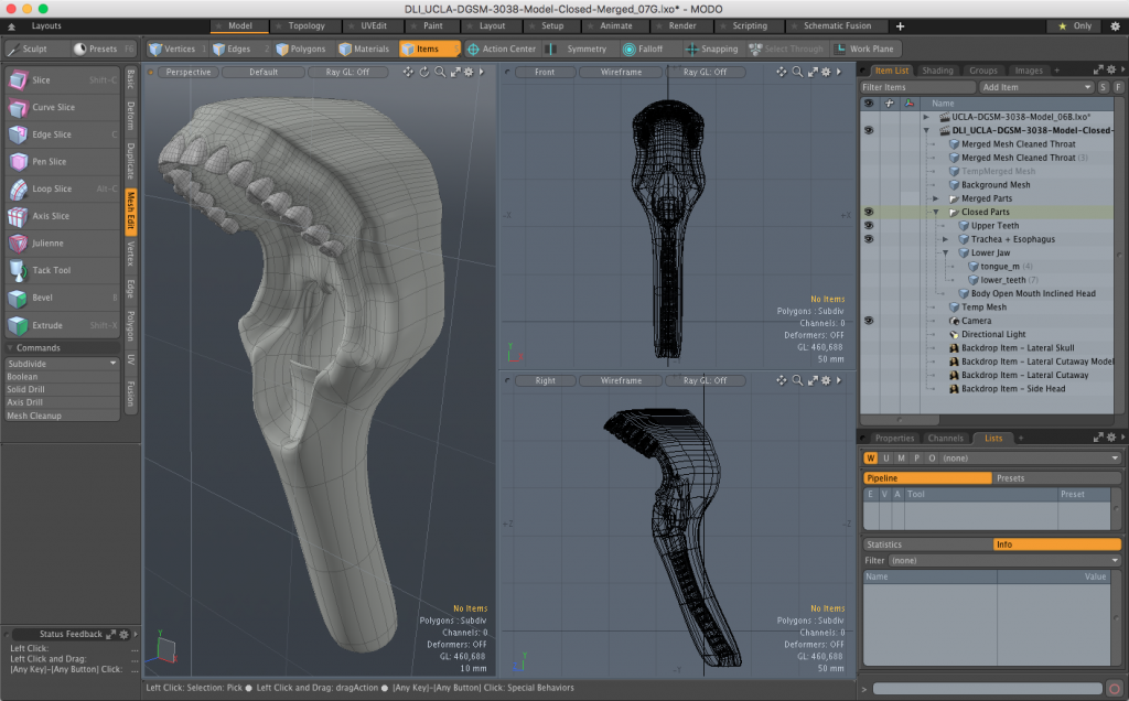 Trachea with closed 3D mesh.